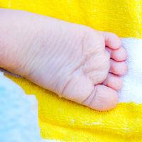 むける 子供 足 の 皮