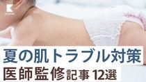 【医師監修・子どもの肌トラブル記事12選】日焼けや水疱瘡、あせもまで。夏にむけて対策、対処を解説