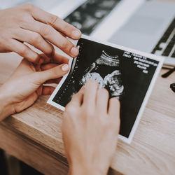 結婚適齢期がなくなっても、妊娠適齢期は変わらない?妊娠の正しい知識