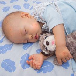 【小児科医監修】赤ちゃんの突発性発疹はうつるの?登園基準や発疹症状、ホームケアなど