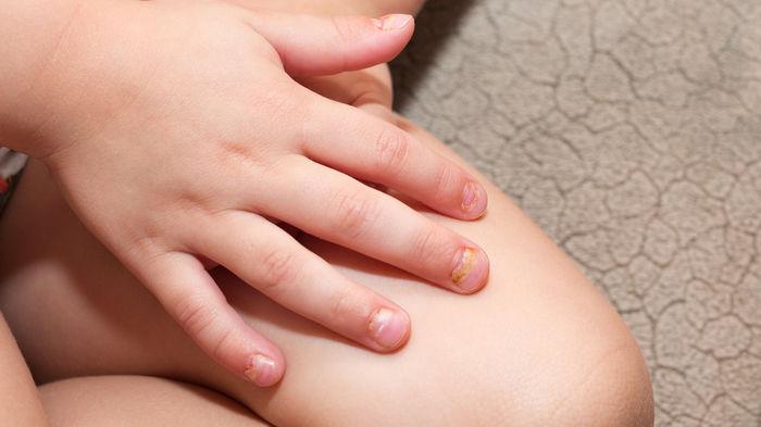 手足 唇 病 発疹