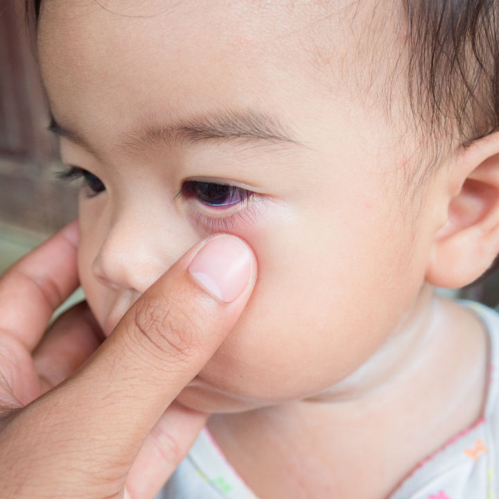 【小児科医監修】子どもの川崎病、原因と症状。難病指定されているの?