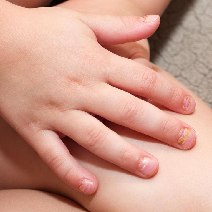 手足口病のうつる期間や時期はいつまで? うつらない方法など