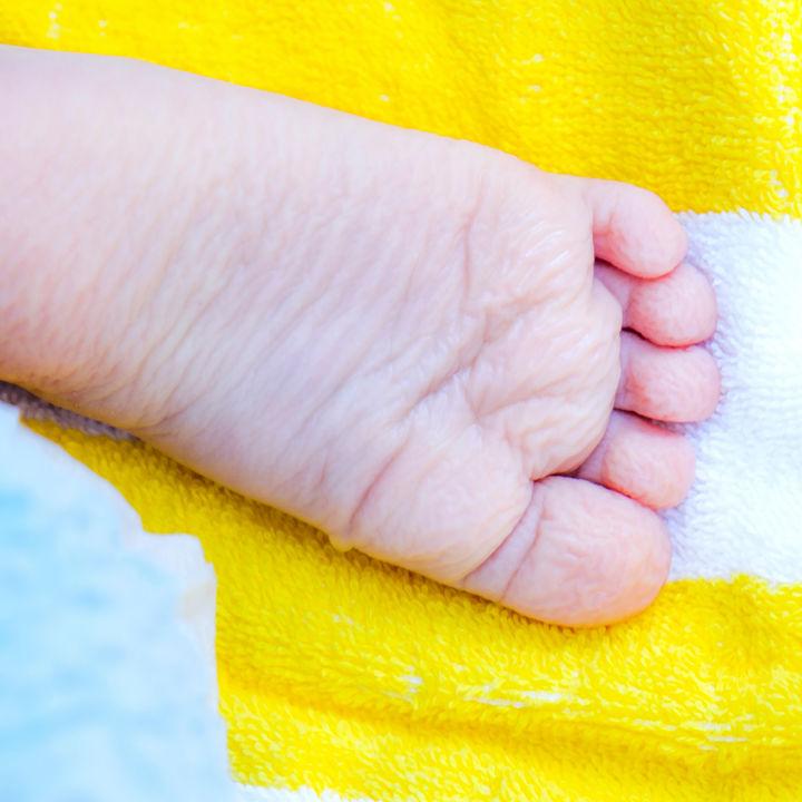 【皮膚科医監修】子どもの水いぼが多い理由と病院での治療や治療後の注意点