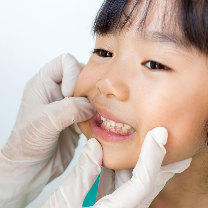【小児科医監修】子どもに口内炎がよくできる。繰り返す原因と対処法