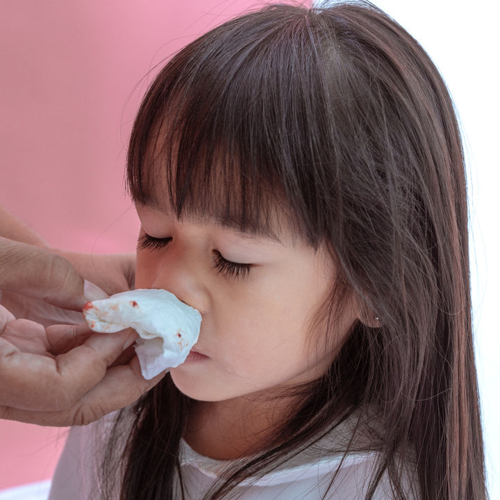 【耳鼻科医監修】子どもの鼻血がよく出る原因と対策